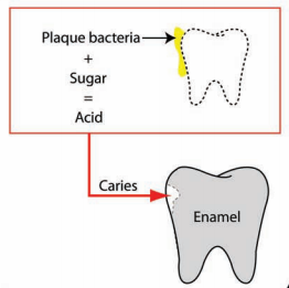 caries overview